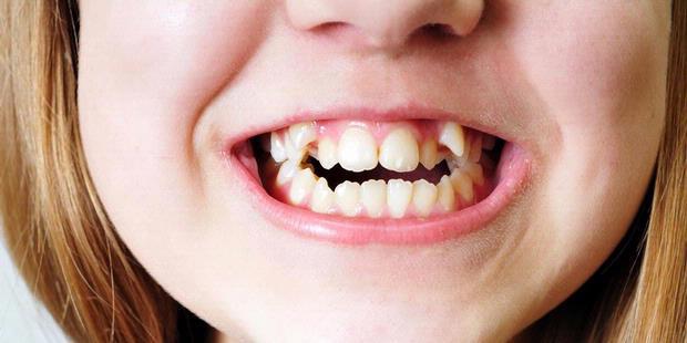 Susunan Pada Gigi Yang Tidak Teratur